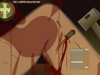 Флеш игра Операция на ноге 2
